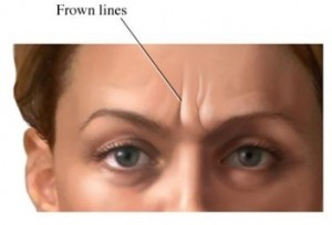 What are frown lines?