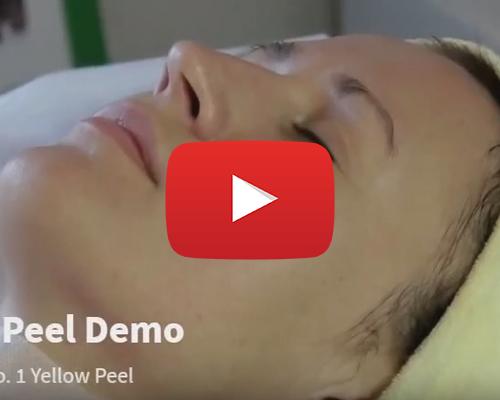 Aakaar Inno Peel: How to Use ?
