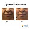 Aqulift-COG-Threads-3