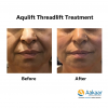 Aqulift Mono Threads