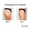 Freezescuplt-Cryolipolysis-1