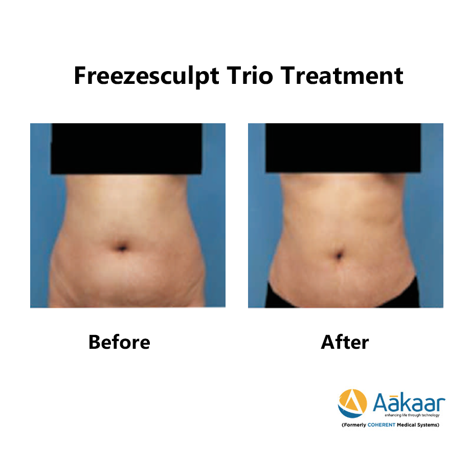 Freezescuplt-Cryolipolysis-2