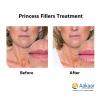 Princess-Filler-with-lidocaine-1