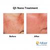 Q5-Nano-Q-switch-Laser-1