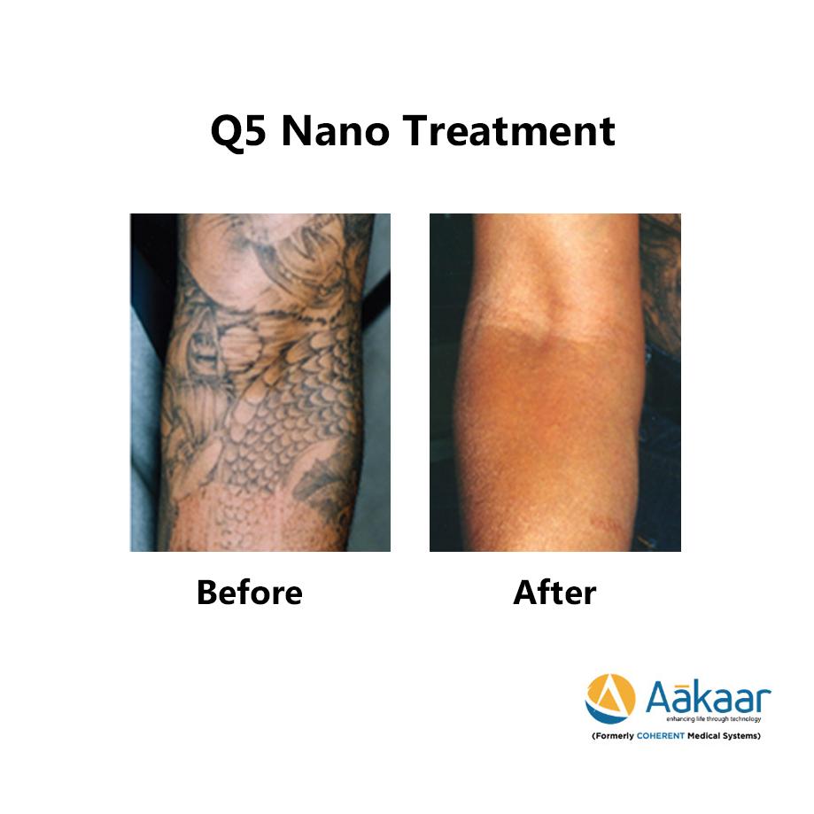 Q5-Nano-Q-switch-Laser-2
