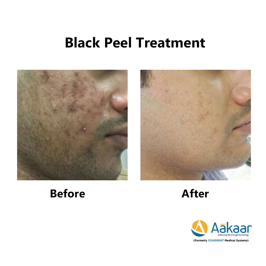 Theraderm-Black-Peel-1