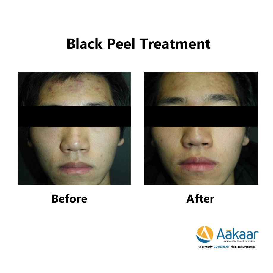 Theraderm-Black-Peel-2