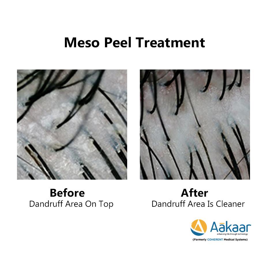 Theraderm-Meso-Peel-1