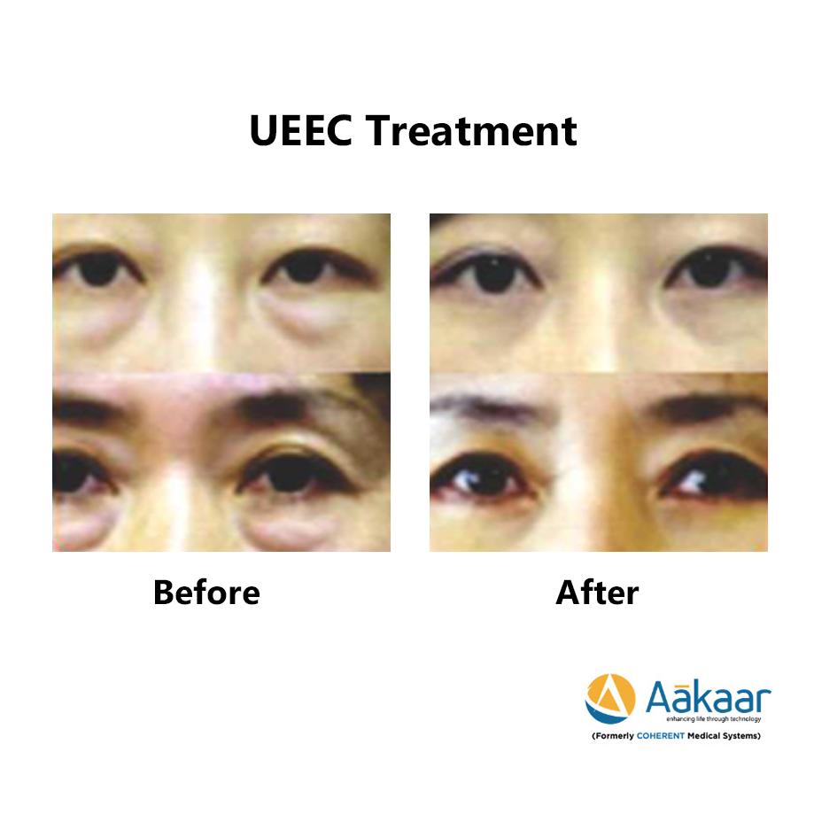 UEEC – Under-Eye