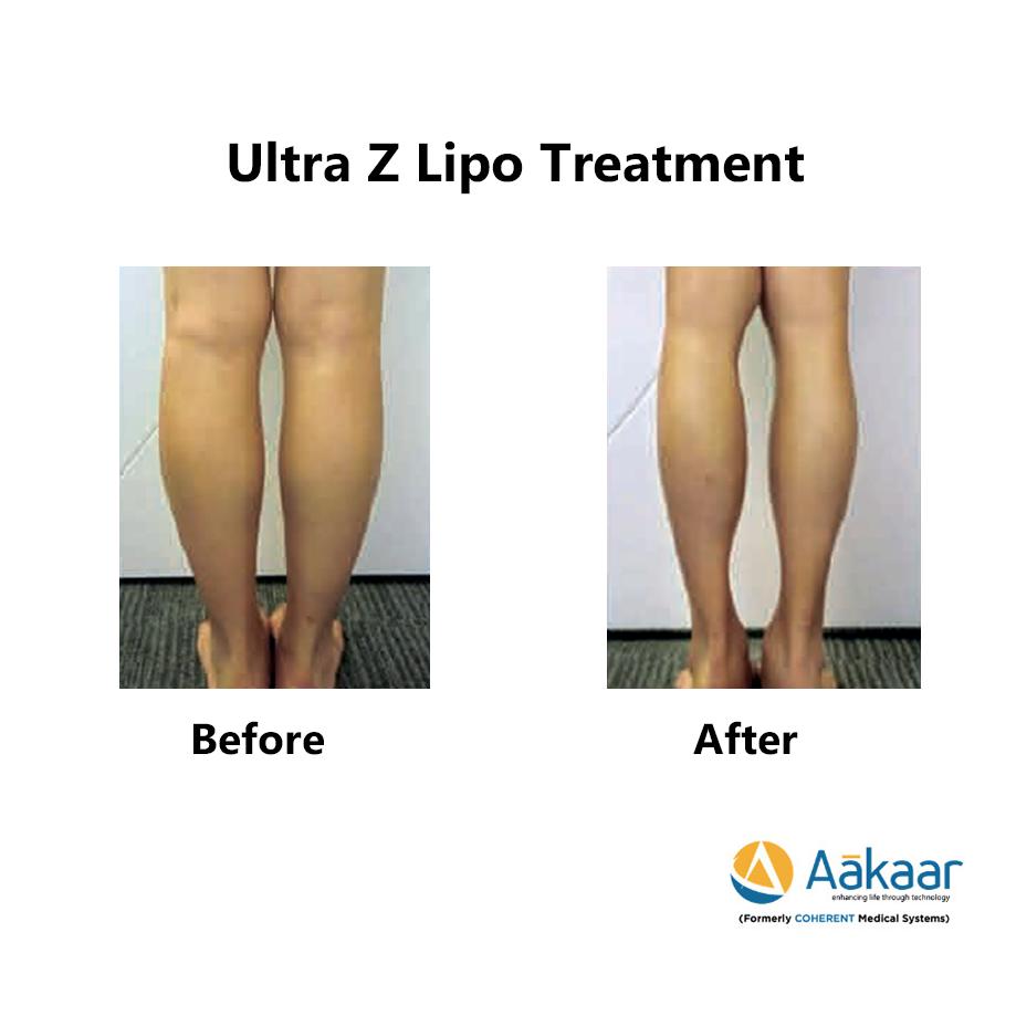 Z-lipo-HI-Definition-Liposuction